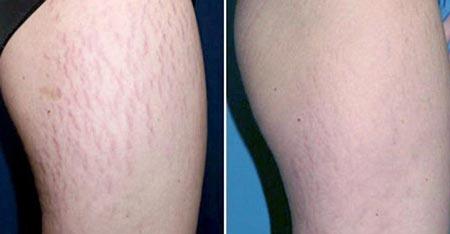 از بین بردن ترک های پوستی با لیزر